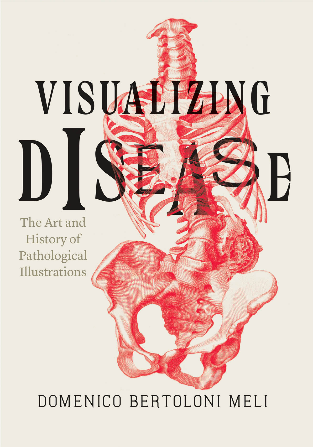 Visualizing Disease